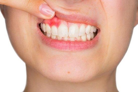 علل خونریزی لثه هنگام مسواک زدن